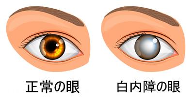 白内障の眼球と正常な人の眼球